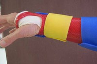 Hand in splint