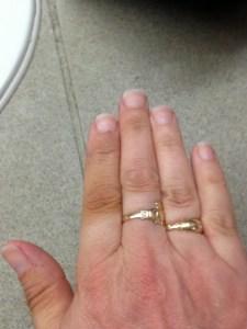 Weird cycling glove knuckle tan lines