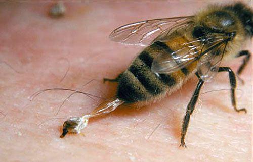 bees stinging के लिए चित्र परिणाम