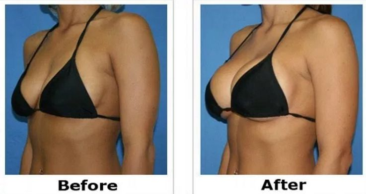 how to increase breast size