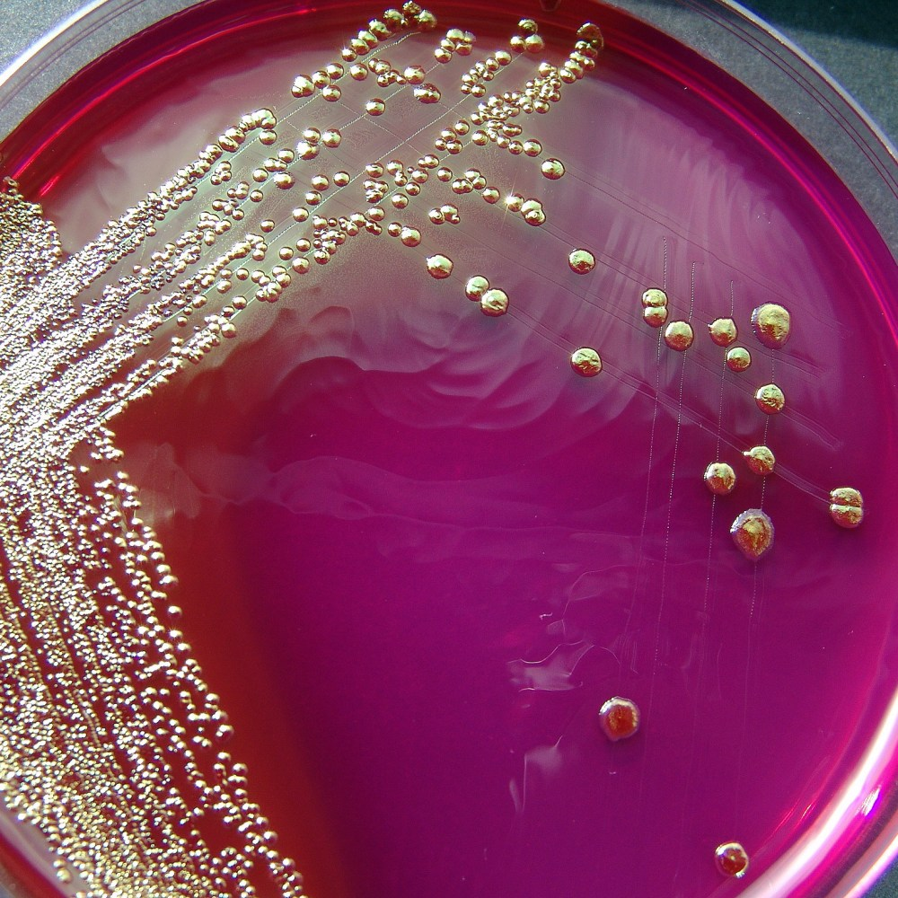 "Gut bacteria and being ""10 percent human"""