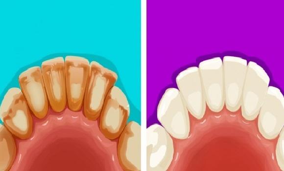 6 hatásos és természetes módszer a fogkő és a foltok eltüntetésére