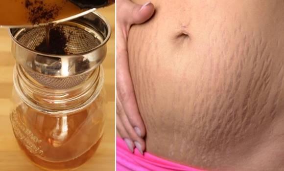 VAN MEGOLDÁS! 7 természetes módszer, ami eltünteti a csíkos bőrt örökre!