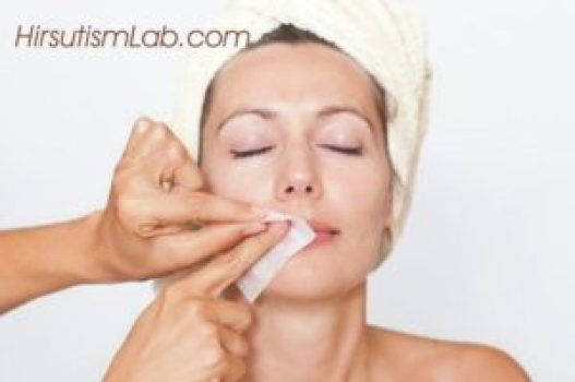 waxing-hirsutism-treatment