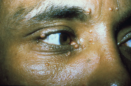 Hiv Aids Ophthalmic Images Hiv