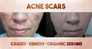 acne_scars_660x330