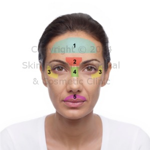 Facial areas treated with BOTOX®