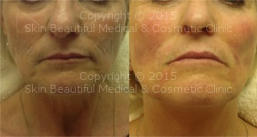Signature 6 point non surgical facelift by Helen Bowes