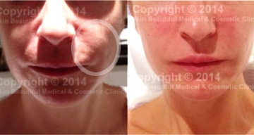 Corrective dermal fill (from overfilling)er treatment