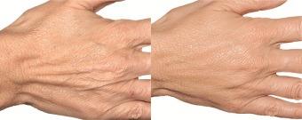 Skin rejuvenation for hands with dermal fillers