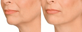 Jaw Definition Before & After Treatment