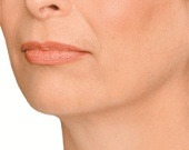 Jaw definition (jowls) treatments