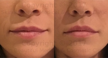 Lip Fillers philtrum definition by Helen Bowes