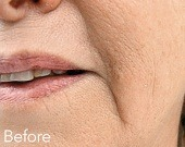 Marionette (mouth) lines treatments