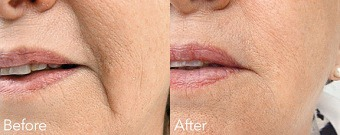 Marionette (Mouth) Lines Before & After Treatment