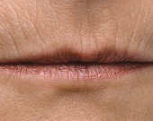 Lip lines (peri oral - smokers lines) treatments