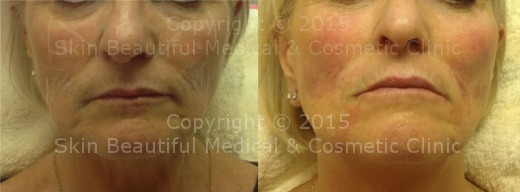 6 point signature facelift by HELEN BOWES