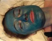 Obagi chemical skin peels Blue Peel Radiance & TCA peel