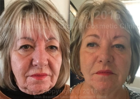 7 Point PDO Facelift by Helen Bowes