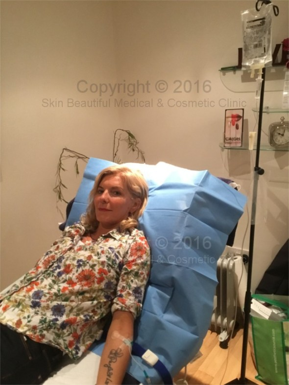 IV vitamin infusions by Helen Bowes at Skin Beautiful Clinics