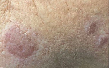 Keratosis - before treatment