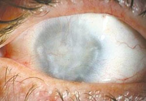 Picture of Juvenile Uveitis