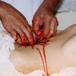 Picture about Magical Healing through Spiritual Psychic Surgery