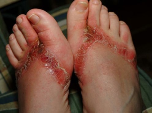 Picture about Wearing Flip Flops Made in China Causing Skin Rashes or Chemical Burns