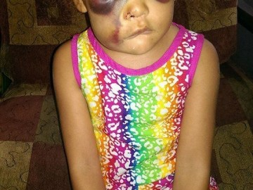 Picture about Badly Beaten in School, Justice for AvaLynn