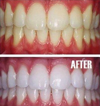 Picture about Natural Teeth Whitening with Turmeric