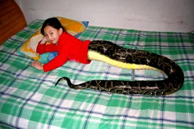 Picture about Thailand Snakegirl with Serpentosis Malianorcis Syndrome