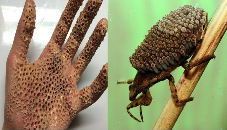 Touching This Insect With Bare Hand Will Infect Virus: Facts