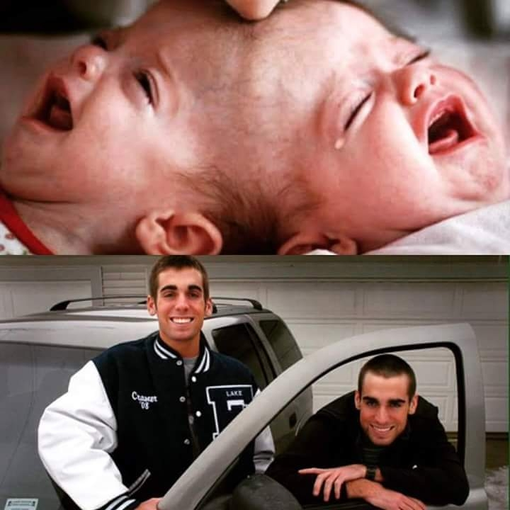 Picture about Before & Now Pictures of Conjoined Twins Separated by Dr. Ben Carson in 1987