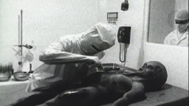Picture from Roswell Alien Autopsy Video