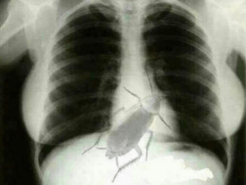 Image about Story of Live Cockroach in X-ray of a Patient