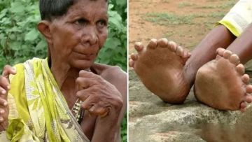 Image of Woman Born with 32 Fingers & Toes Branded Witch