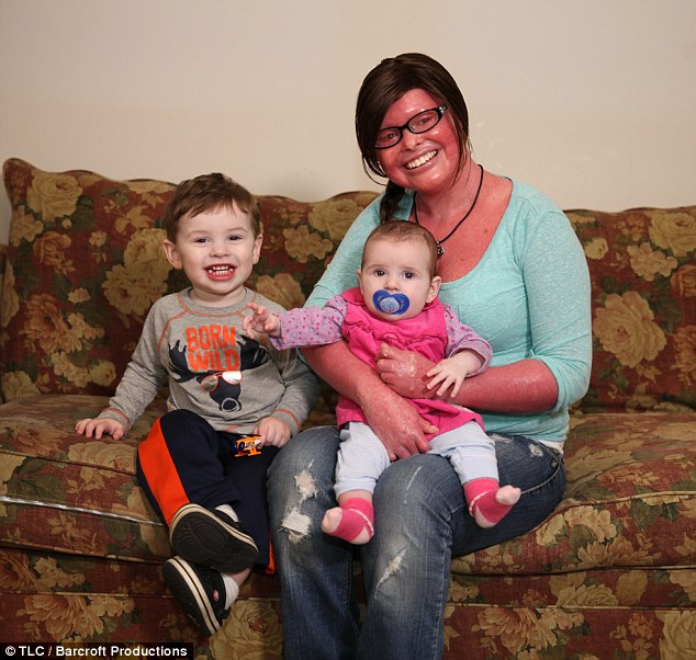 Image of U.S. woman Stephanie Turner survived Harlequin Ichthyosis and gave birth to kids also
