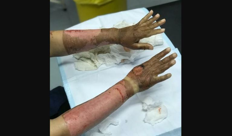 Lady Applied Sanitizer on Her Arms, Caught Fire in Kitchen: Fact Check