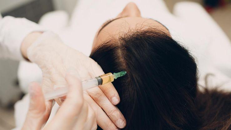 plasma hair treatment
