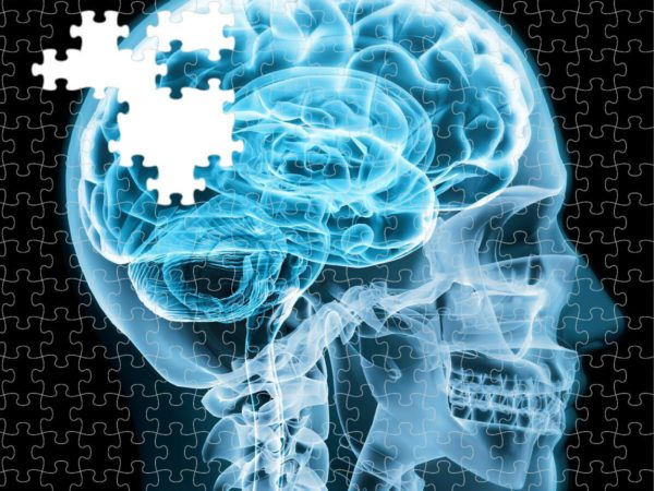 brain puzzle e1480456845769 Alzheimer's is a diabetic disorder of the brain, researchers find