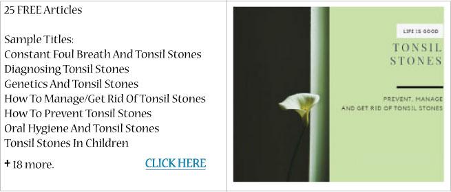 Tonsil Stones2 Tonsil Stones