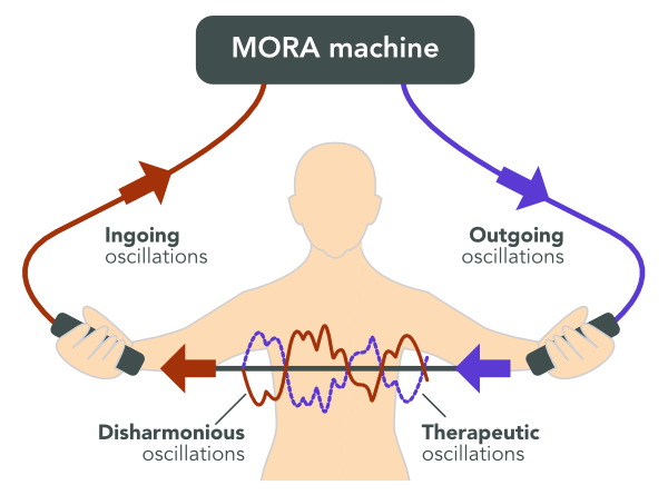 Diagram of oscillations being sent to MORA machine and returned to a person as therapy.