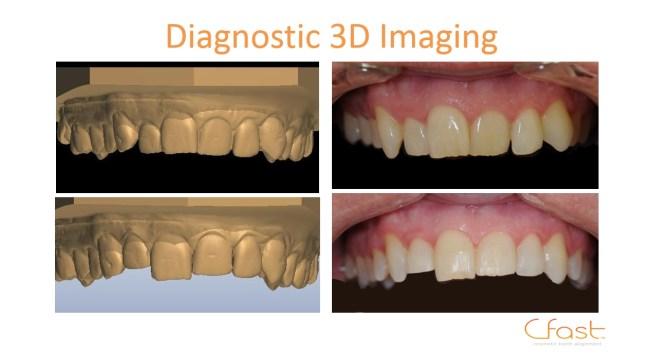 3D teeth brace Edinburgh