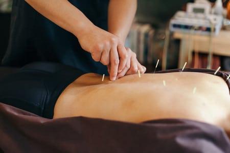 La acupuntura: ¿Un tratamiento de disfunción eréctil?