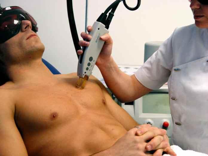 ¿Cuáles son los beneficios de la depilación láser masculina?