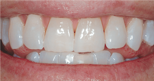 After Zoom Teeth Whitening Image