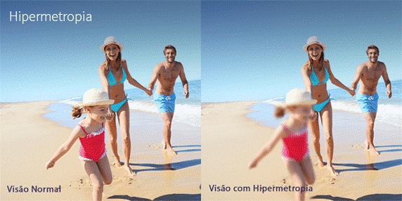 Quais são os sintomas da hipermetropia?