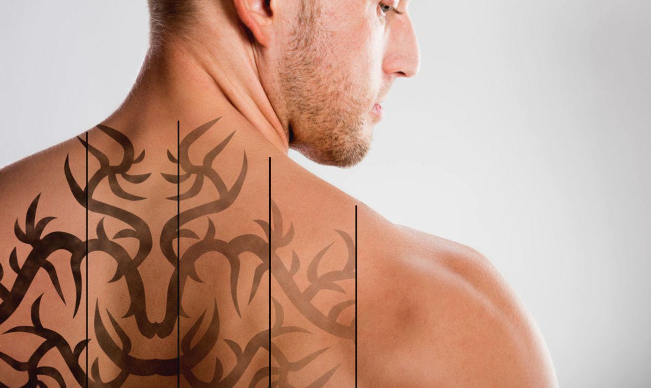 Como Escolher Tatuagem Homem cansou da tatuagem? apague a laser as marcas do passado