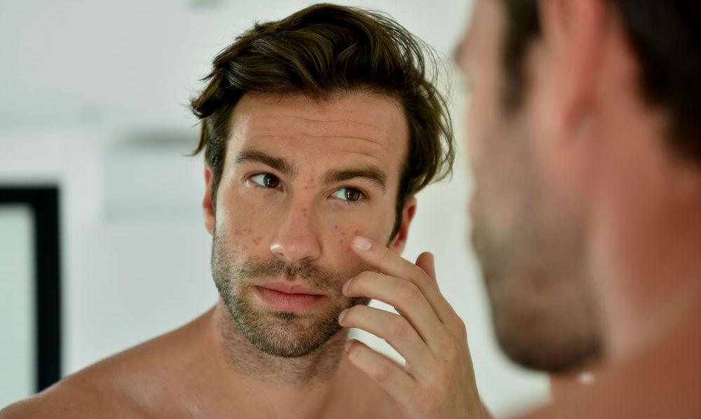 Como tratar a acne - pele aceneica