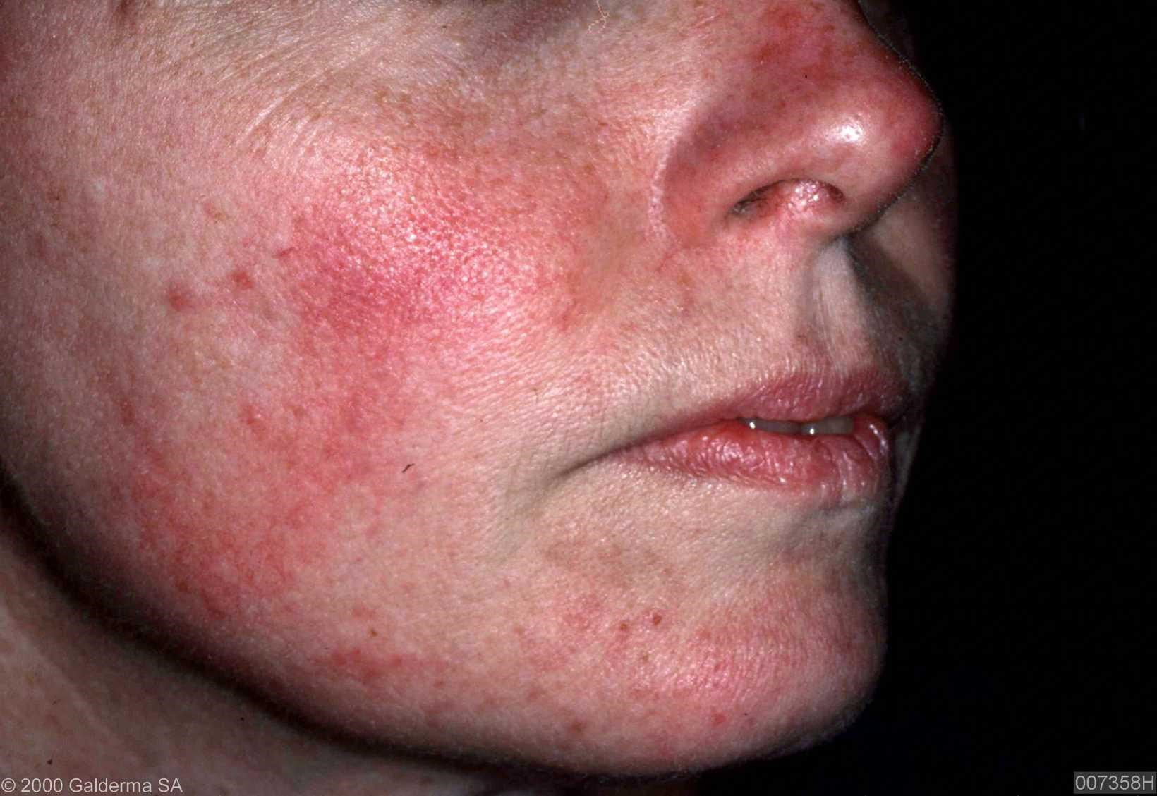 Nose Rosacea Natural Cures